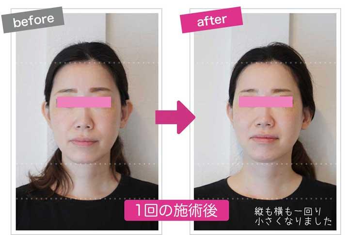 顔の縦幅まで小さくなっている小顔施術後のbefore&after画像