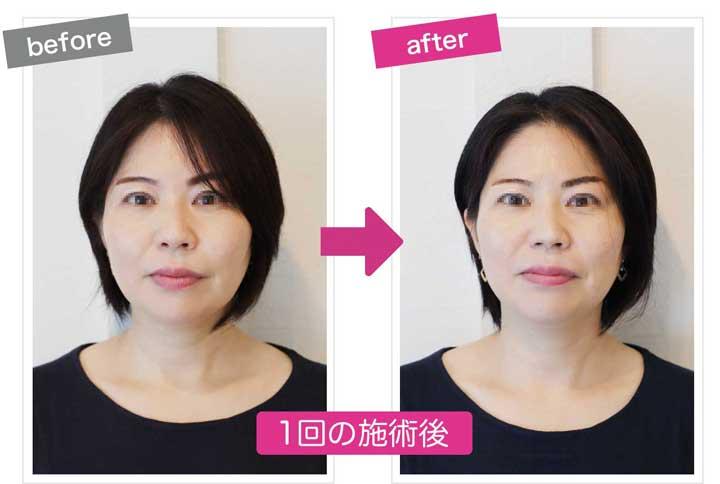 目がキラキラしている小顔施術後のbefore&after画像