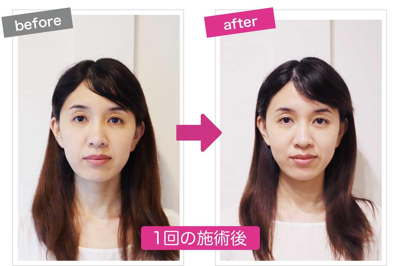 小顔施術後のbefore&after画像