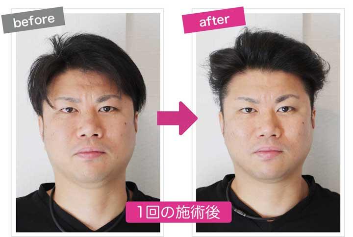むくんだ男性の小顔施術後のbefore&after画像