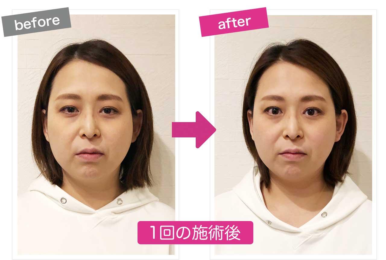 かなり効果が分かりやすい小顔施術後before&after画像