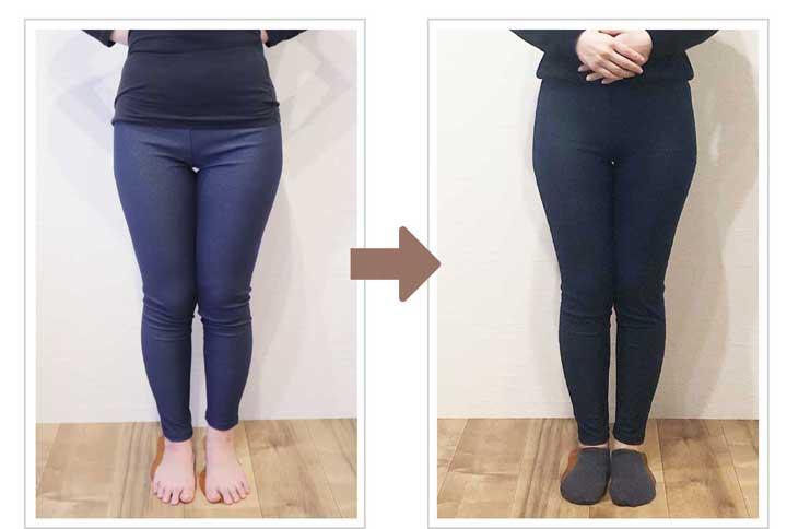 美脚・骨盤矯正セラピー施術後のX脚の変化