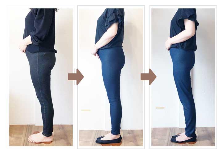 3ヶ月、6ヶ月経過後の姿勢と脚のラインの変化