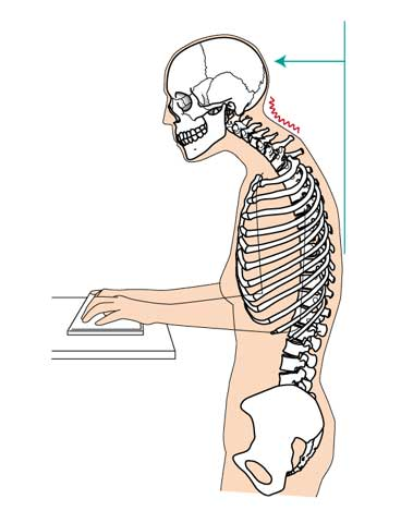ストレートネックの人体模型
