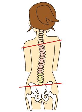 背骨と骨盤にゆがみがある女性