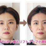 頭とリフトアップ小顔矯正