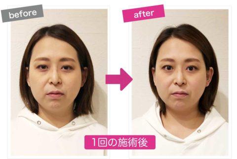 痛くない小顔矯正を施術後の左右を比較した画像