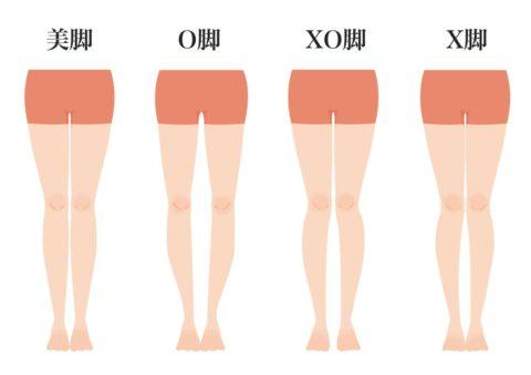 美脚、O脚、X脚、XO脚の分類